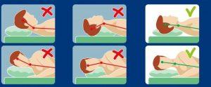 arthrose cervicale posture